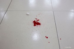 Blood Spill on the floor of casualty department of a Medical College Hospital